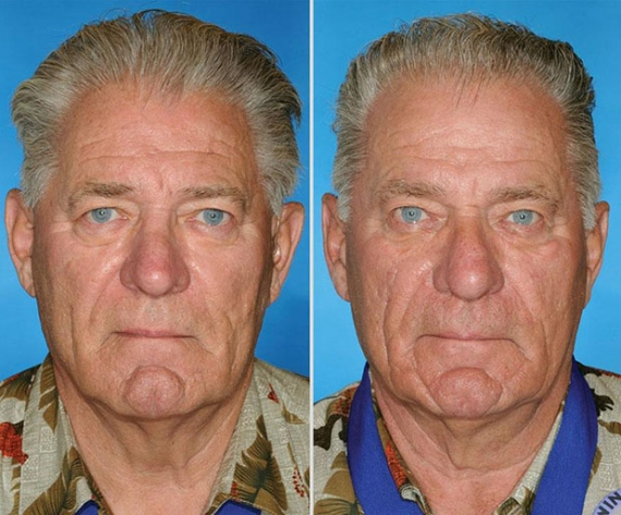 smoking-nonsmoking-identical-twins-aging-effects-2