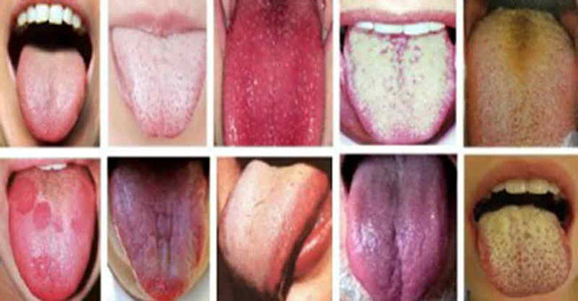 tongue-color-discoloration